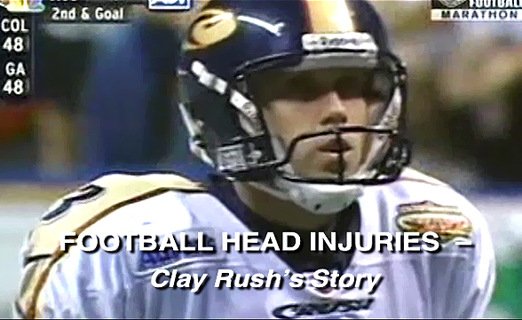 Football Head Injuries - Clay Rush's Story