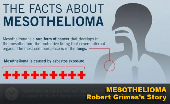 Mesothelioma - Robert Grimes's Story